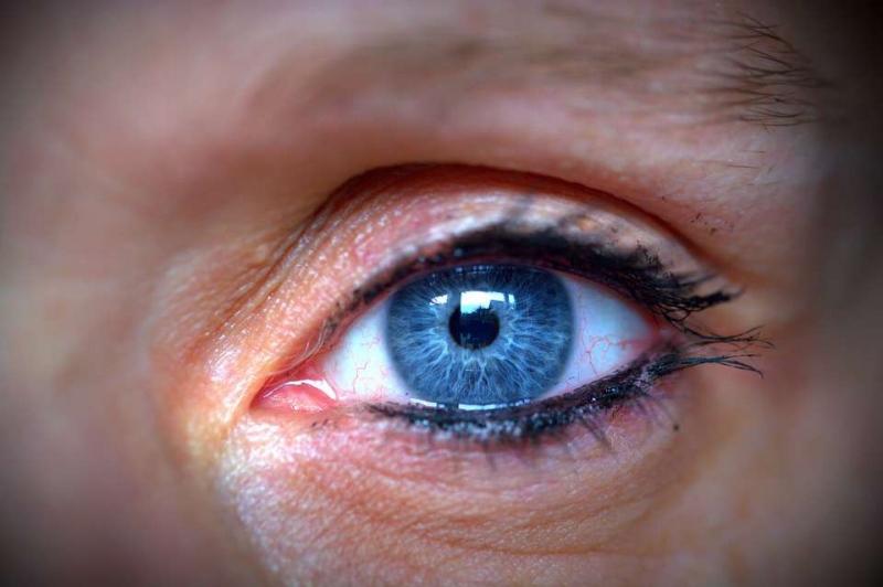 怎么快速去除黑眼圈去除黑眼圈的小窍门